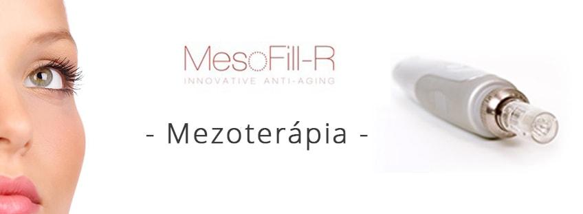 Mezoterápia