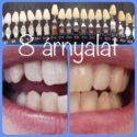 fogfehérítés eredménye 8 árnyalattal fehérebb fogak