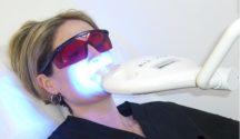 fogfehérítés kezelés közben